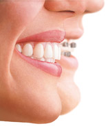 Invisalign Open Evening