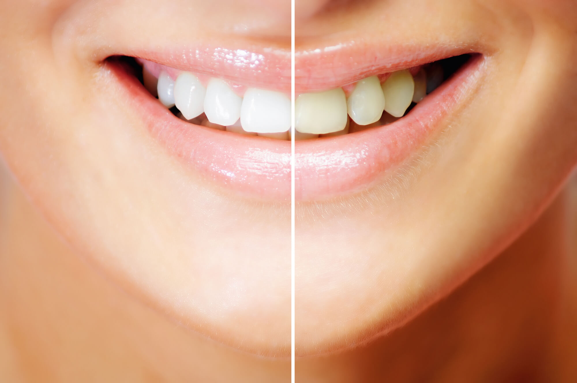 Tips And Myths For Teeth Whitening At Home