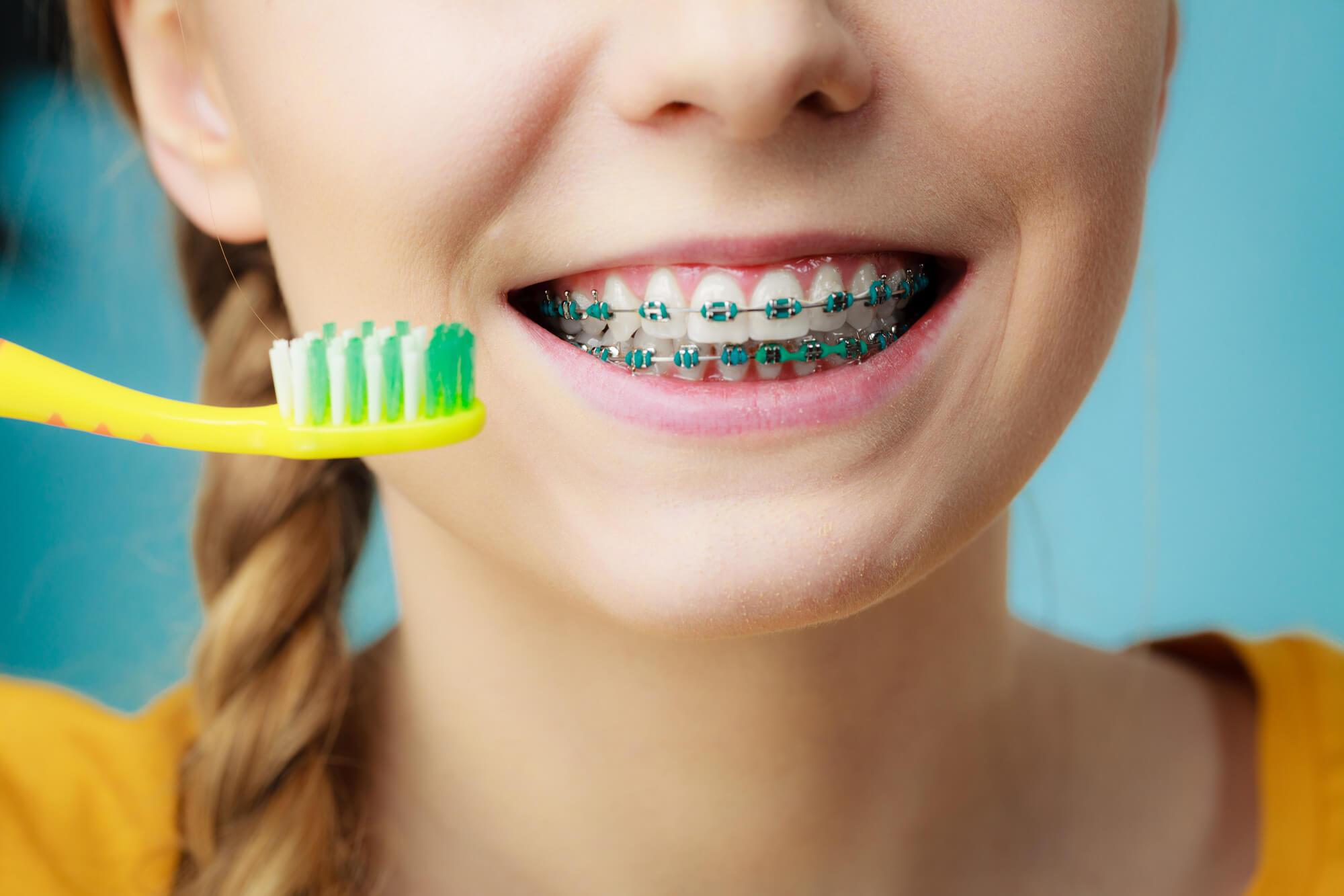 Woman with teeth braces using brush